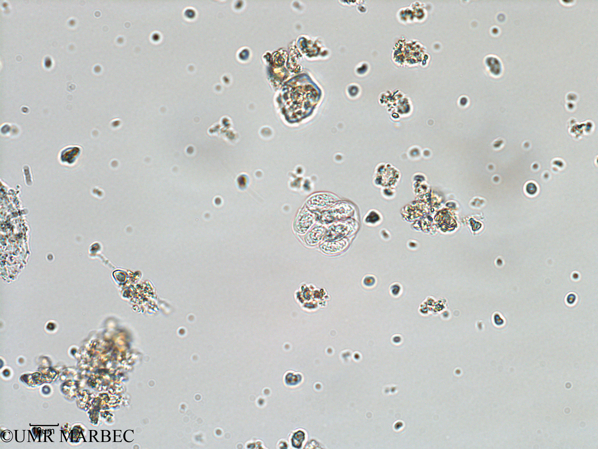 phyto/Bizerte/bizerte_bay/RISCO February 2015/Oocystis sp (ancien Baie_T1-A_oocystis-14).tif(copy).jpg