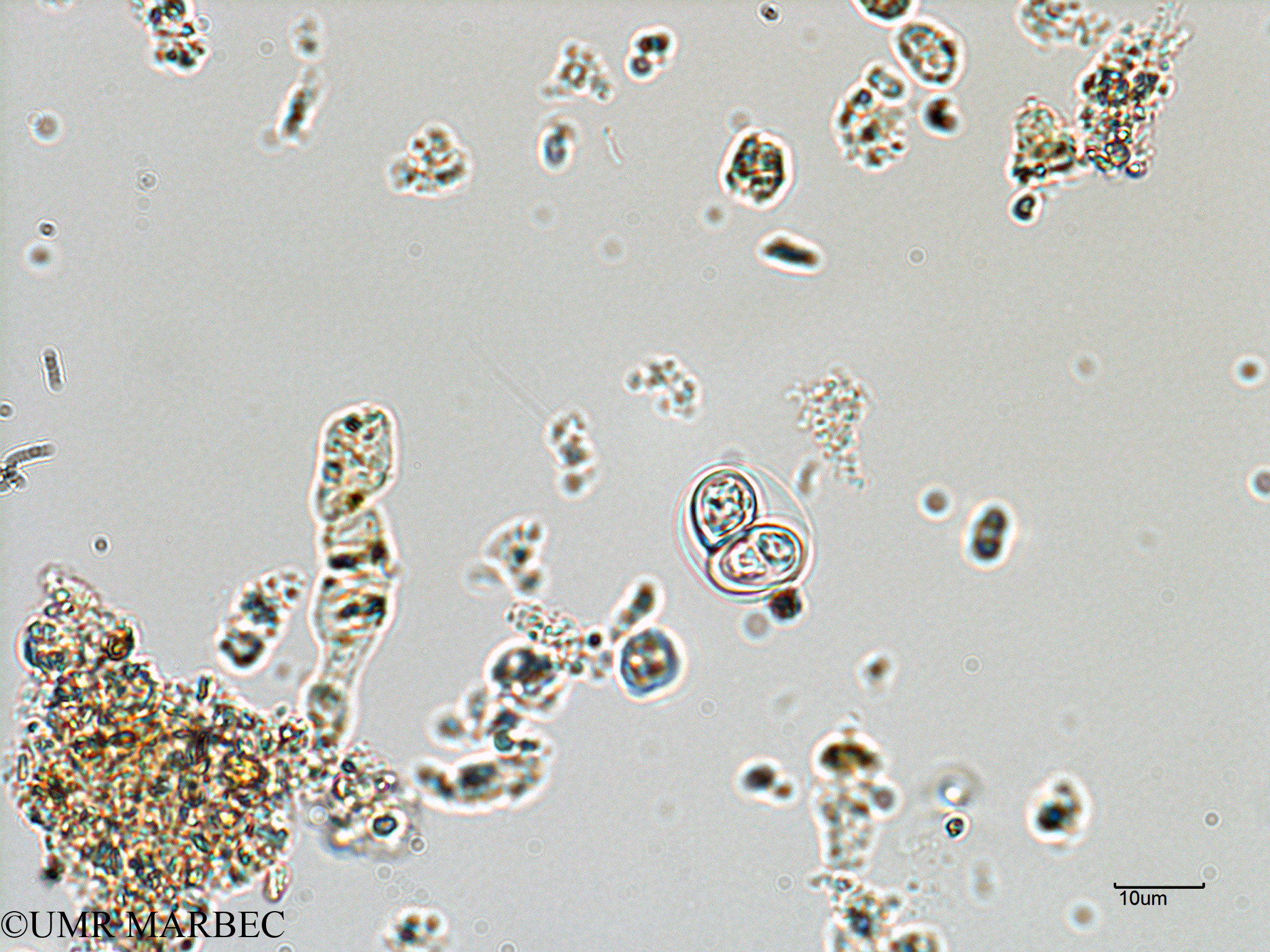 phyto/Bizerte/bizerte_lagoon/RISCO February 2015/Oocystis sp (ancien Lagune_T1-A_oocystis).tif(copy).jpg