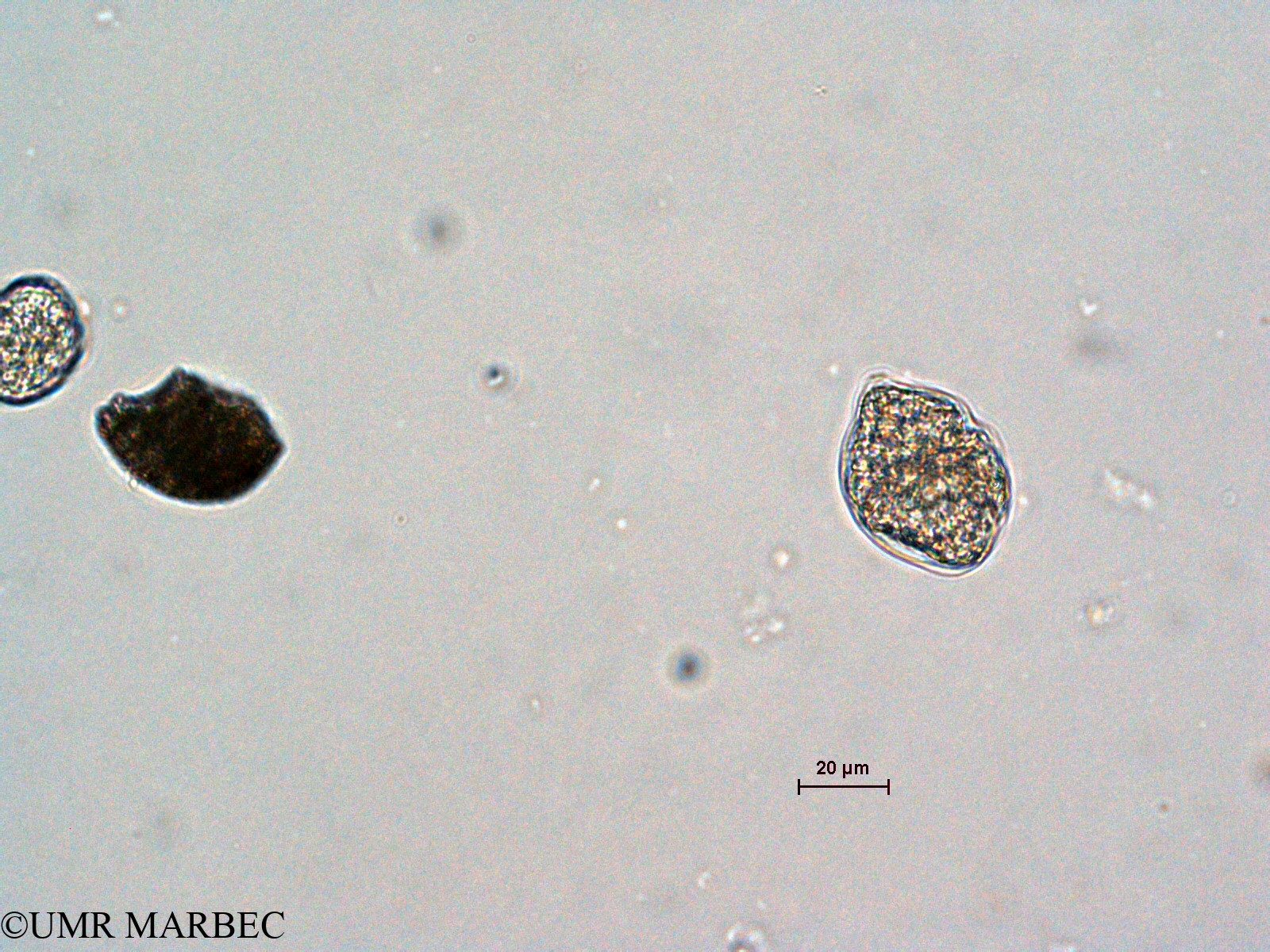 phyto/Scattered_Islands/all/COMMA April 2011/Gyrodinium sp2 (ancien Gyrodinium sp1 -3)(copy).jpg