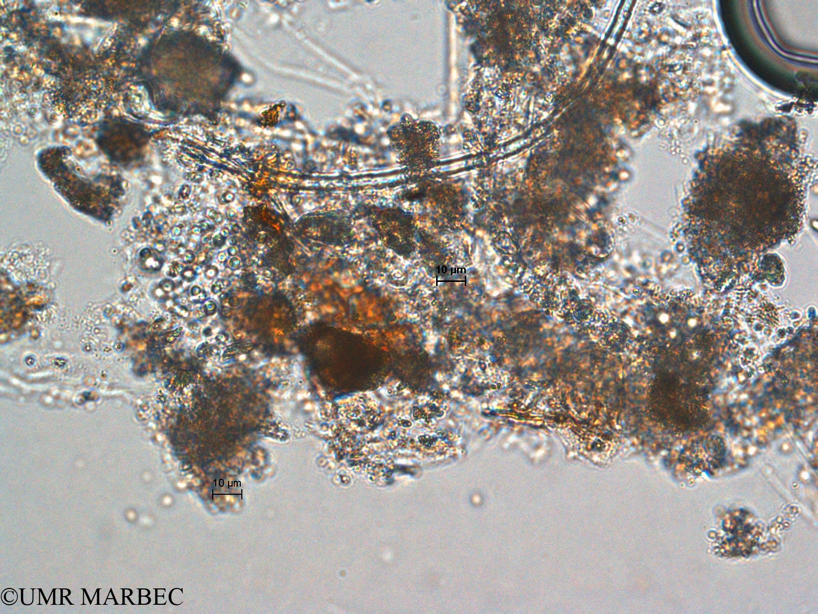 phyto/Scattered_Islands/europa/COMMA April 2011/Aphanocapsa sp4 (ancien Chroococcus sp7)(copy).jpg