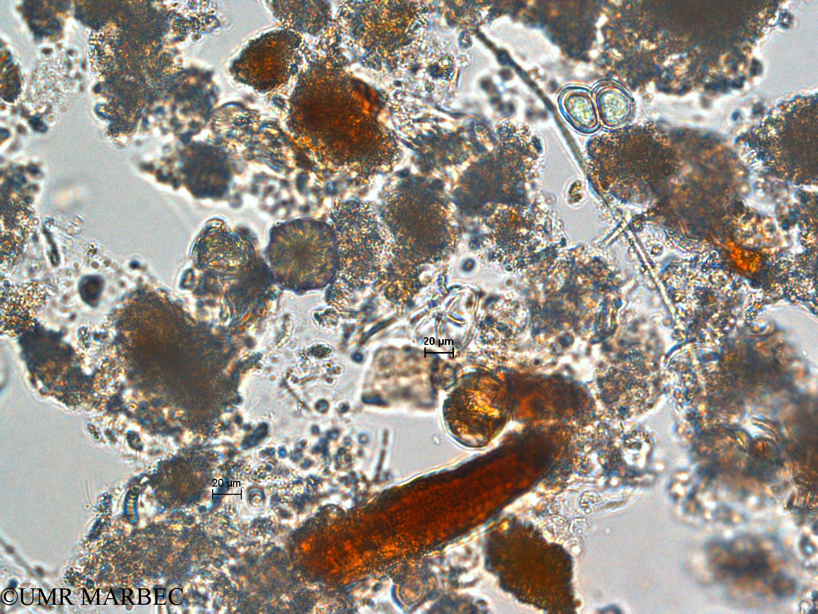 phyto/Scattered_Islands/europa/COMMA April 2011/Chroococcus turgidus (ancien C. sp8 -1)(copy).jpg