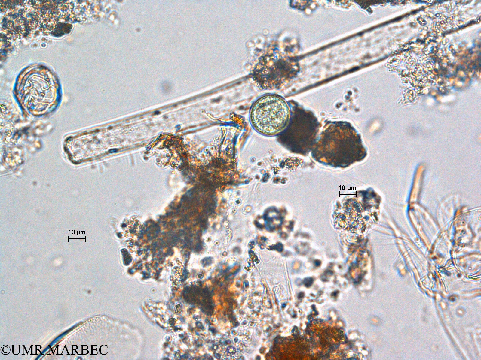 phyto/Scattered_Islands/europa/COMMA April 2011/Chroococcus turgidus (ancien C. sp8 -2)(copy).jpg
