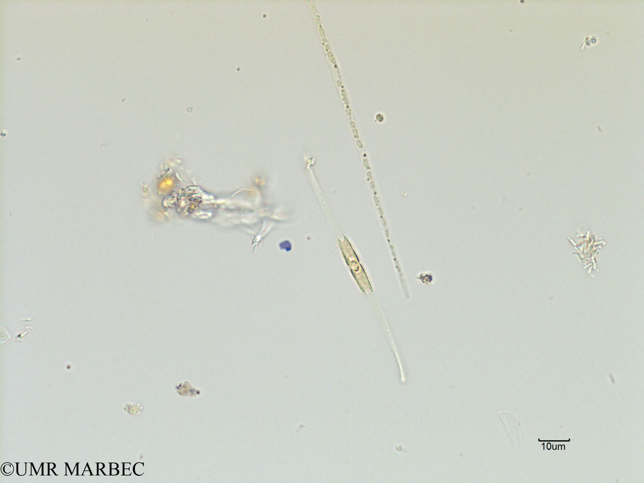 phyto/Scattered_Islands/iles_glorieuses/SIREME November 2015/Gyrosigma prolongatum (SIREME-Glorieuses2015-ech1-171116-Pleurosigma ou nitzschia-4)(copy).jpg