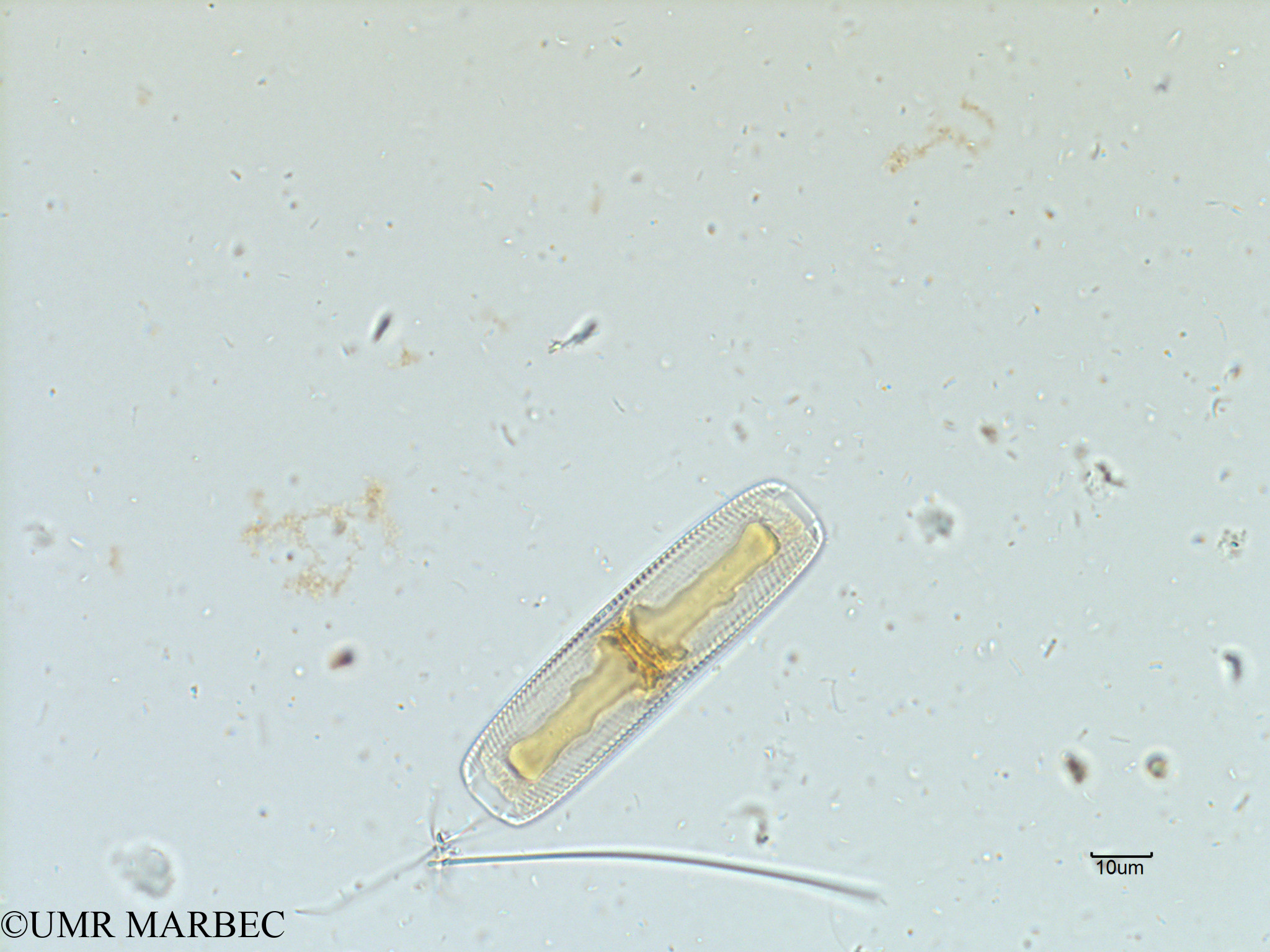 phyto/Scattered_Islands/iles_glorieuses/SIREME November 2015/Navicula sp6 (SIREME-Glorieuses2015-ech6-211116-photo34)(copy).jpg