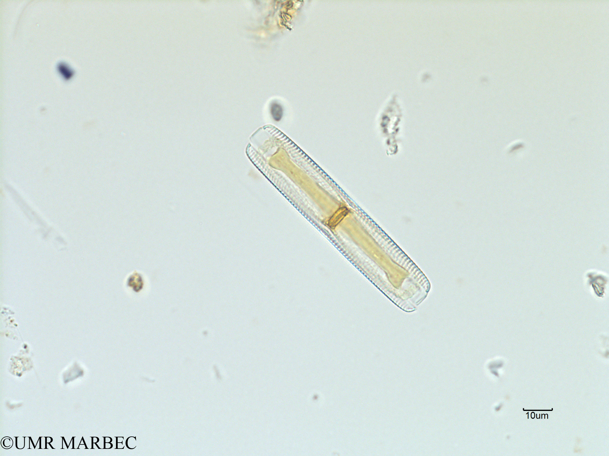 phyto/Scattered_Islands/iles_glorieuses/SIREME November 2015/Navicula sp6 (SIREME-Glorieuses2015-ech6-211116-photo6-2)(copy).jpg