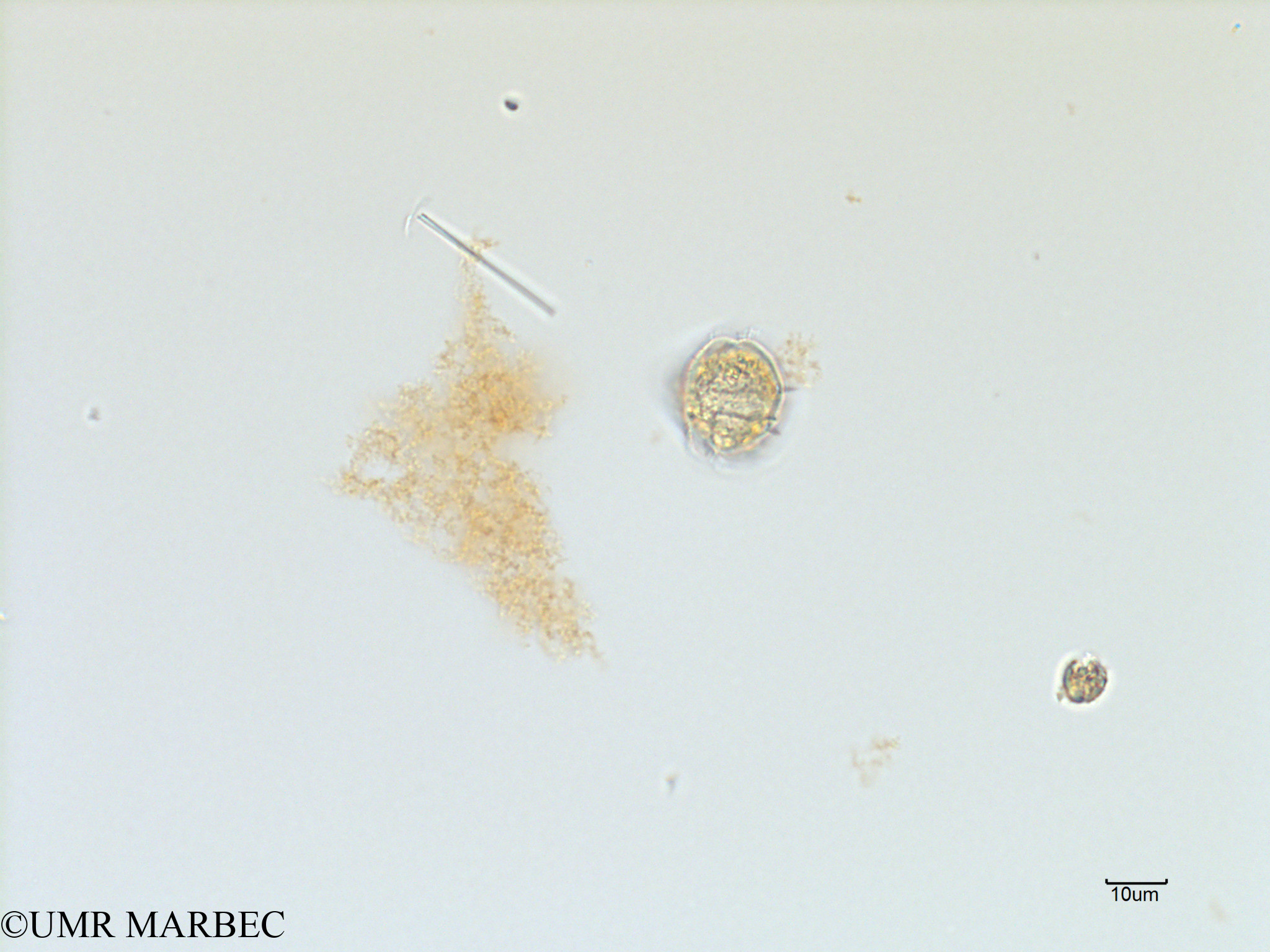 phyto/Scattered_Islands/iles_glorieuses/SIREME November 2015/Protoperidinium sp43 (SIREME-Glorieuses2015-ech4-231116-photo42-3)(copy).jpg