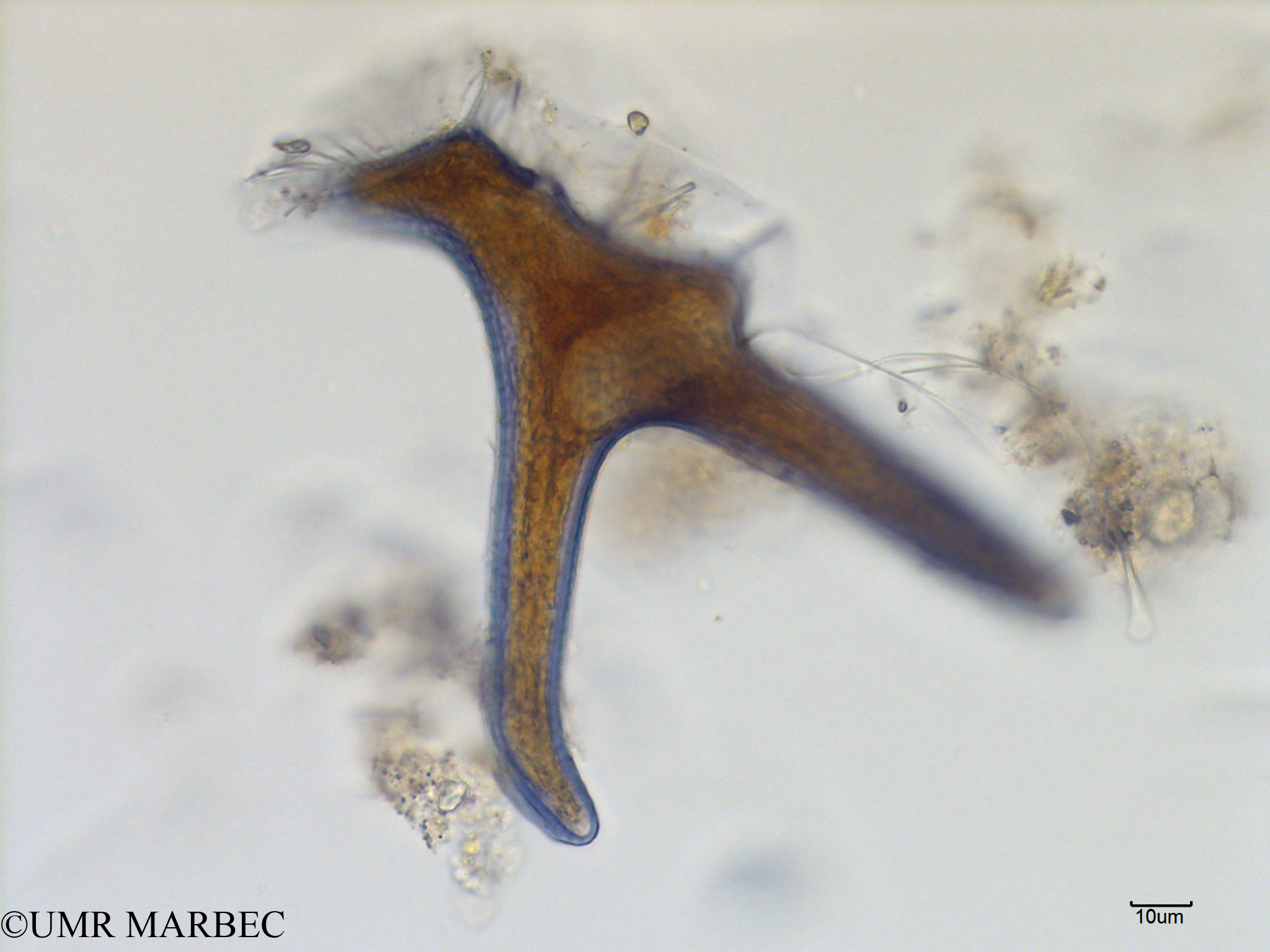 phyto/Scattered_Islands/mayotte_lagoon/SIREME May 2016/Dinophysis miles (MAY8_dino a identifier-13).tif(copy).jpg