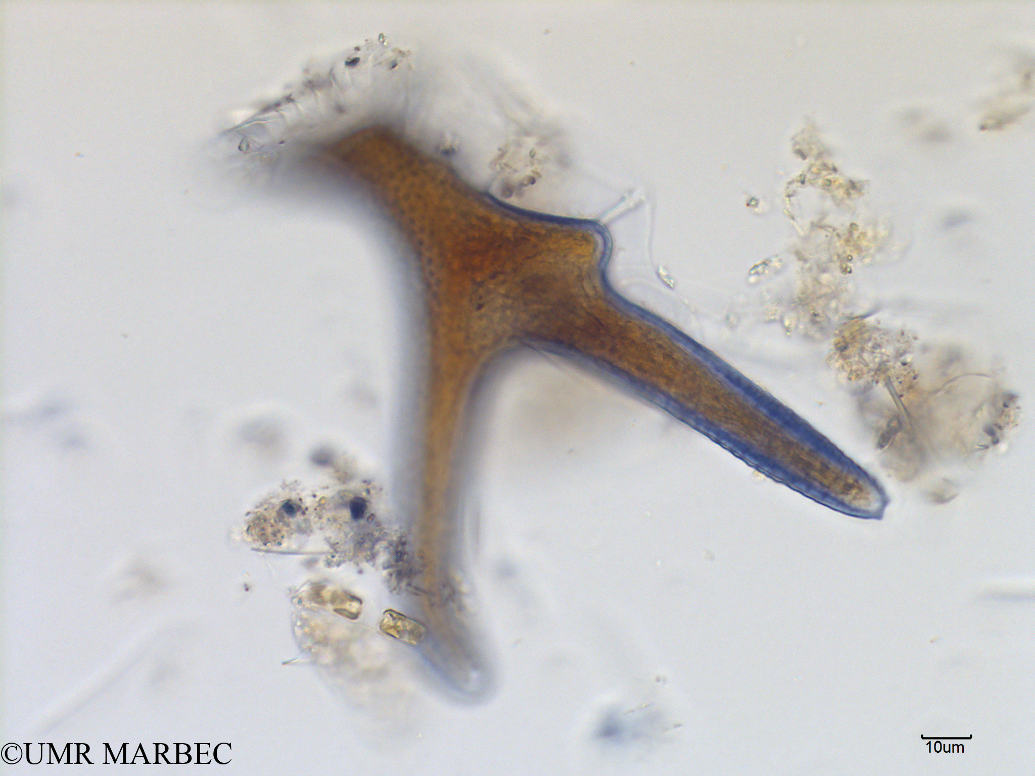 phyto/Scattered_Islands/mayotte_lagoon/SIREME May 2016/Dinophysis miles (MAY8_dino a identifier-15).tif(copy).jpg