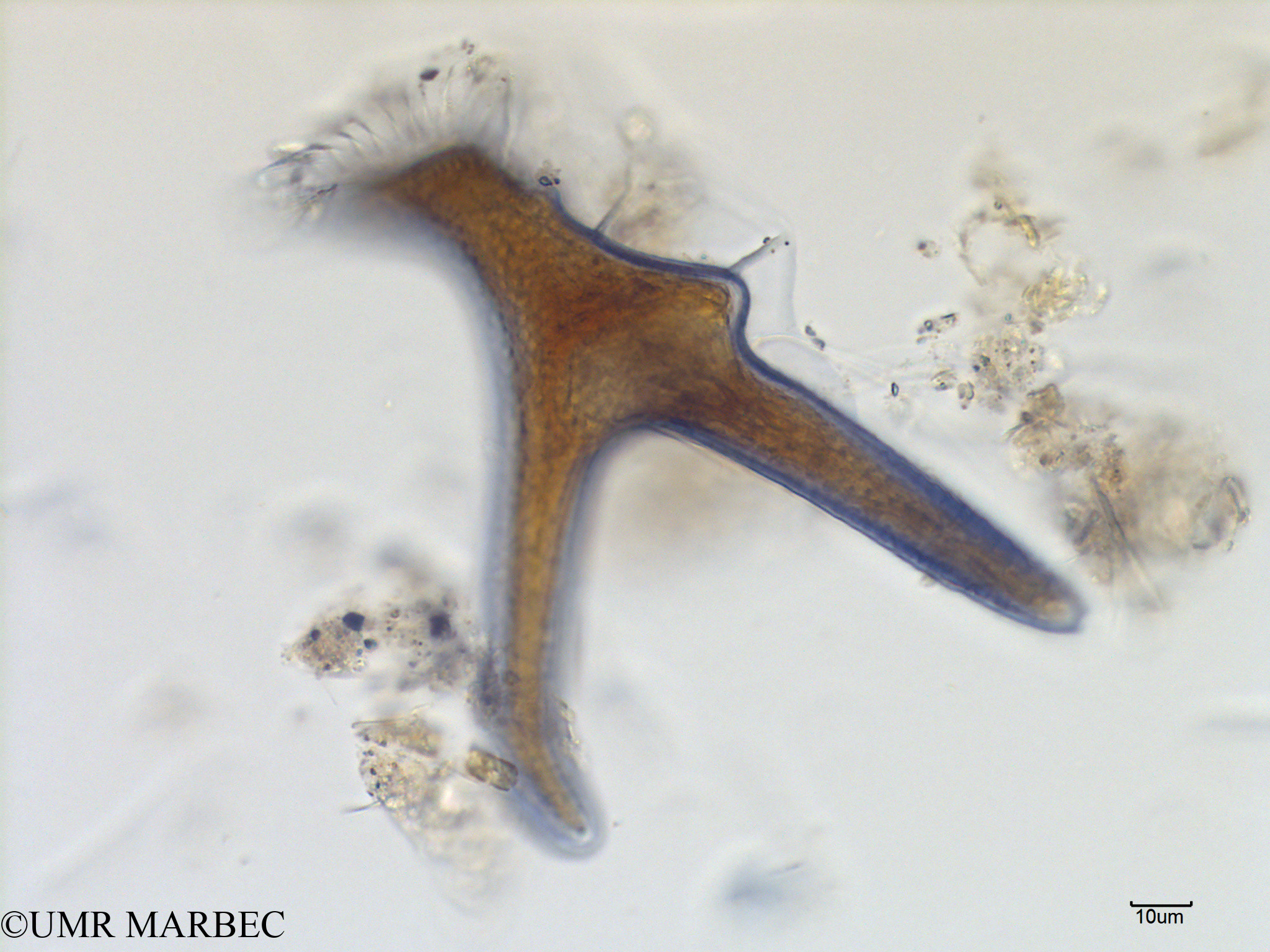 phyto/Scattered_Islands/mayotte_lagoon/SIREME May 2016/Dinophysis miles (MAY8_dino a identifier-20).tif(copy).jpg