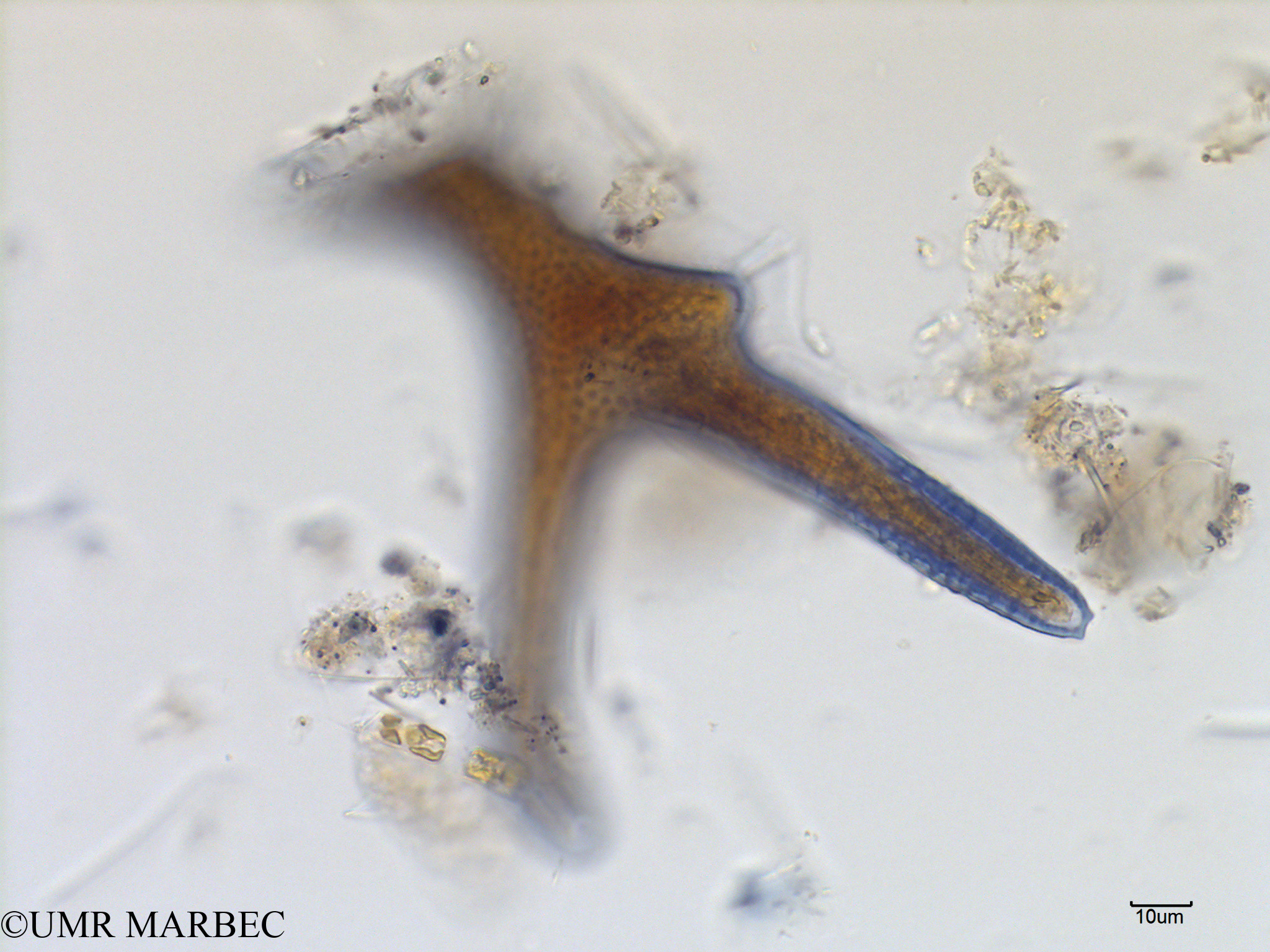 phyto/Scattered_Islands/mayotte_lagoon/SIREME May 2016/Dinophysis miles (MAY8_dino a identifier-9).tif(copy).jpg