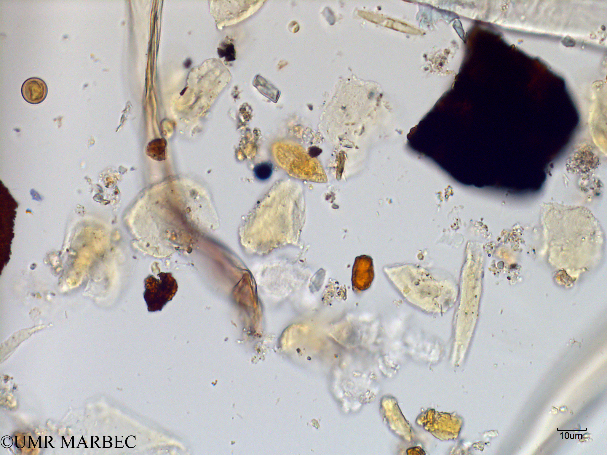 phyto/Scattered_Islands/mayotte_lagoon/SIREME May 2016/Katodinium sp (MAY2_dino cf cochlodinium-3).tif(copy).jpg