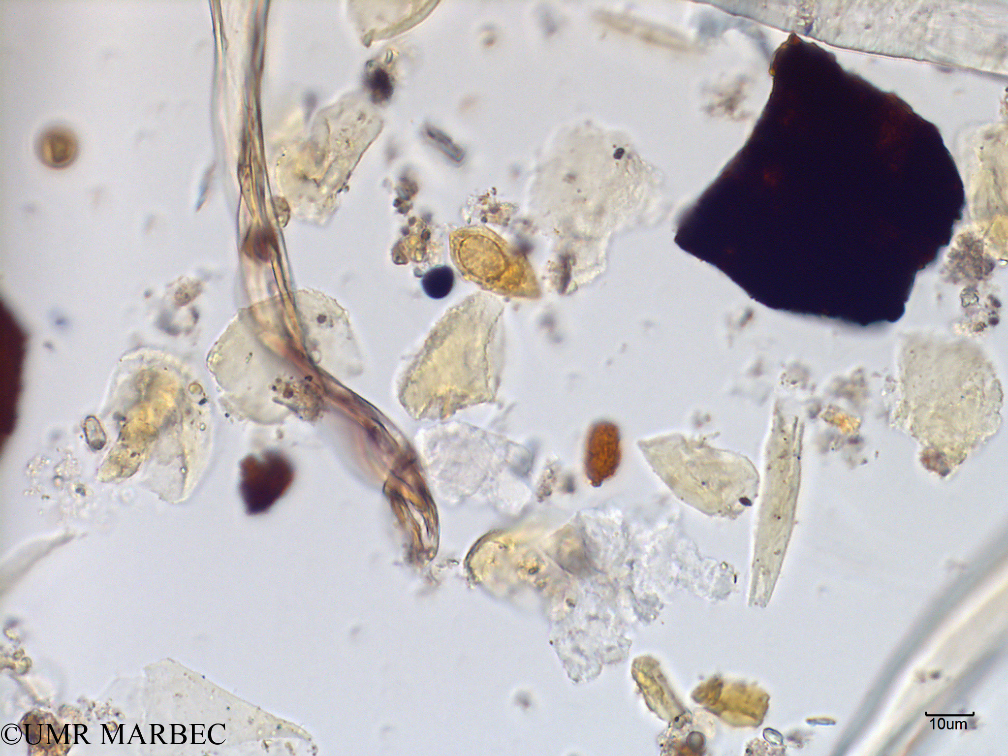 phyto/Scattered_Islands/mayotte_lagoon/SIREME May 2016/Katodinium sp (MAY2_dino cf cochlodinium-5).tif(copy).jpg