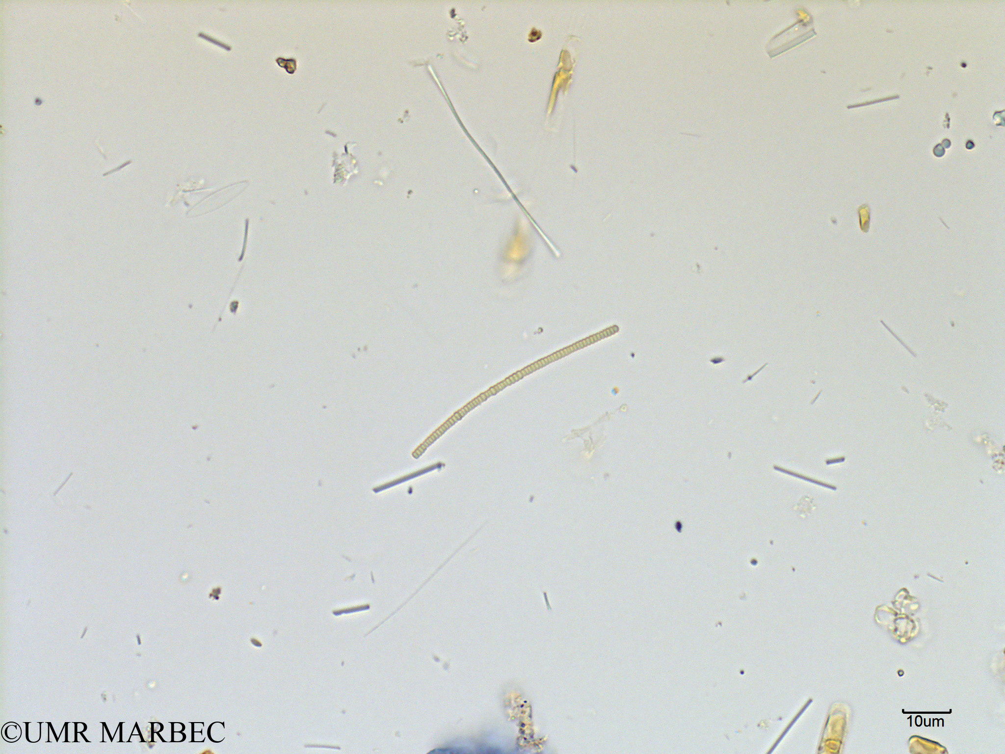 phyto/Scattered_Islands/mayotte_lagoon/SIREME May 2016/Oscillatoriale spp (MAY7_cyano petite2).tif(copy).jpg