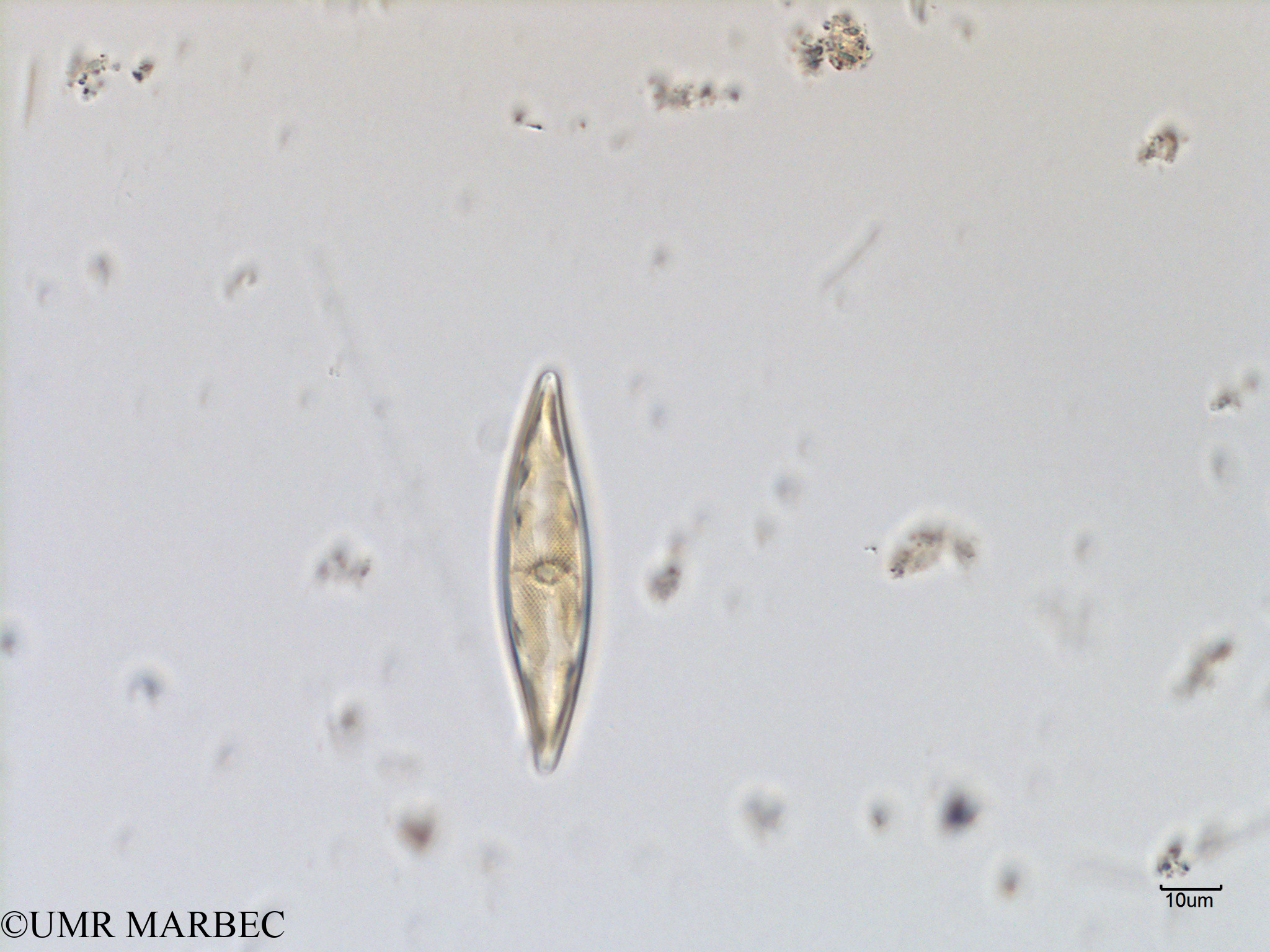 phyto/Scattered_Islands/mayotte_lagoon/SIREME May 2016/Pleurosigma sp10 (MAY4_pleurosigma-2).tif(copy).jpg