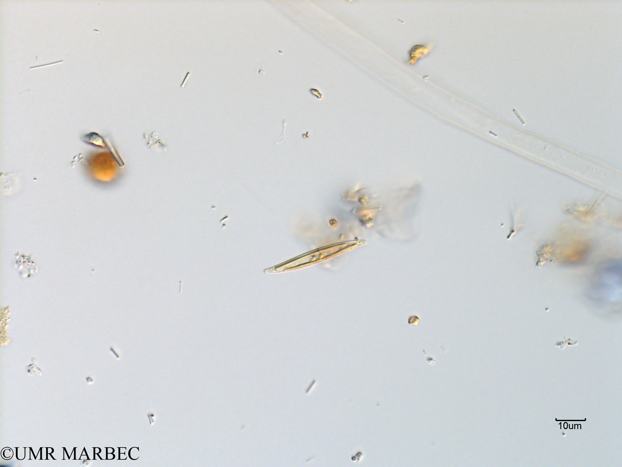 phyto/Scattered_Islands/mayotte_lagoon/SIREME May 2016/Pleurosigma sp11 (MAY11_cf pleurosigma).tif(copy).jpg