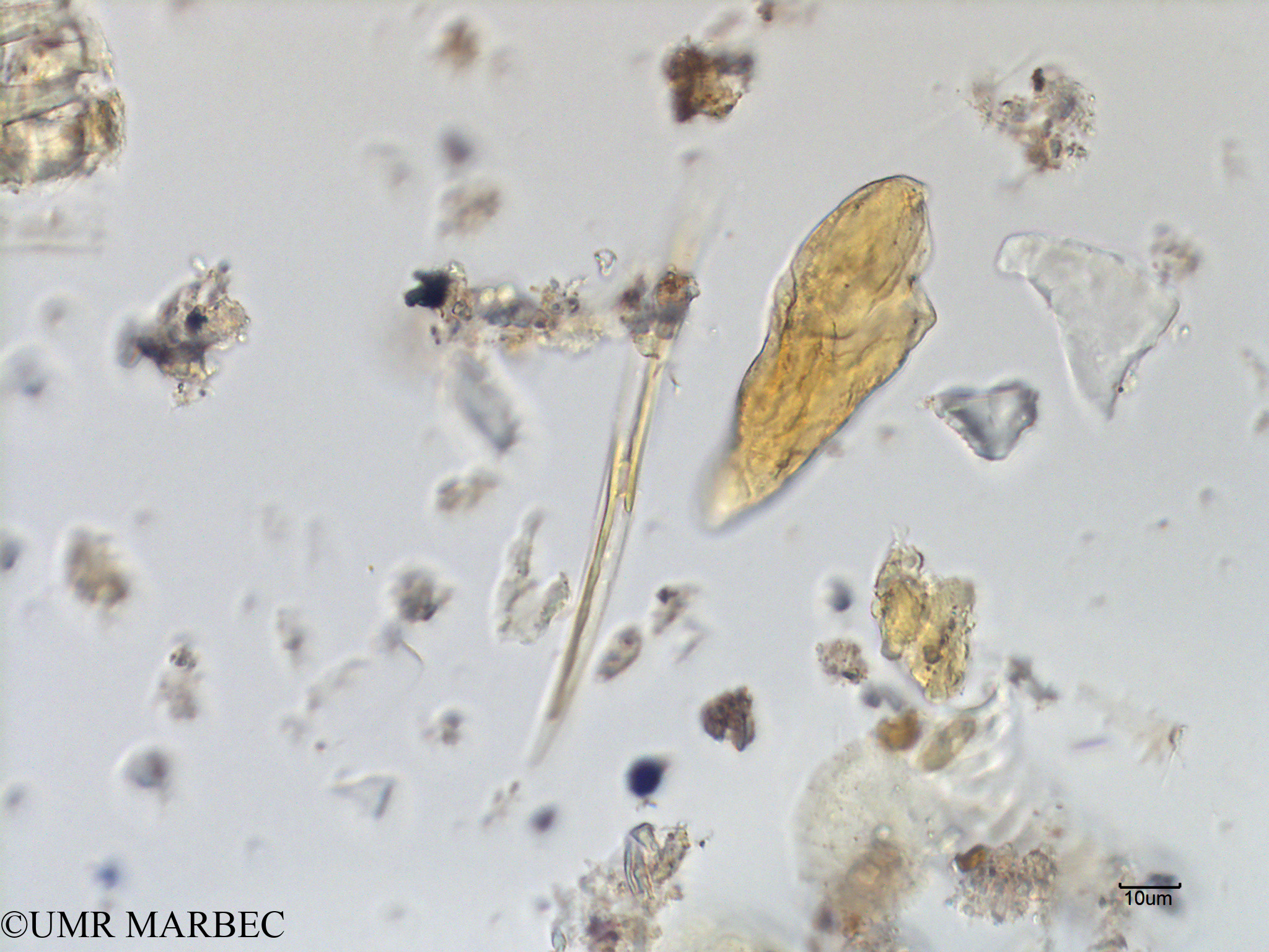 phyto/Scattered_Islands/mayotte_lagoon/SIREME May 2016/Pleurosigma sp9 (MAY2_cf pleuro tres fin-1).tif(copy).jpg