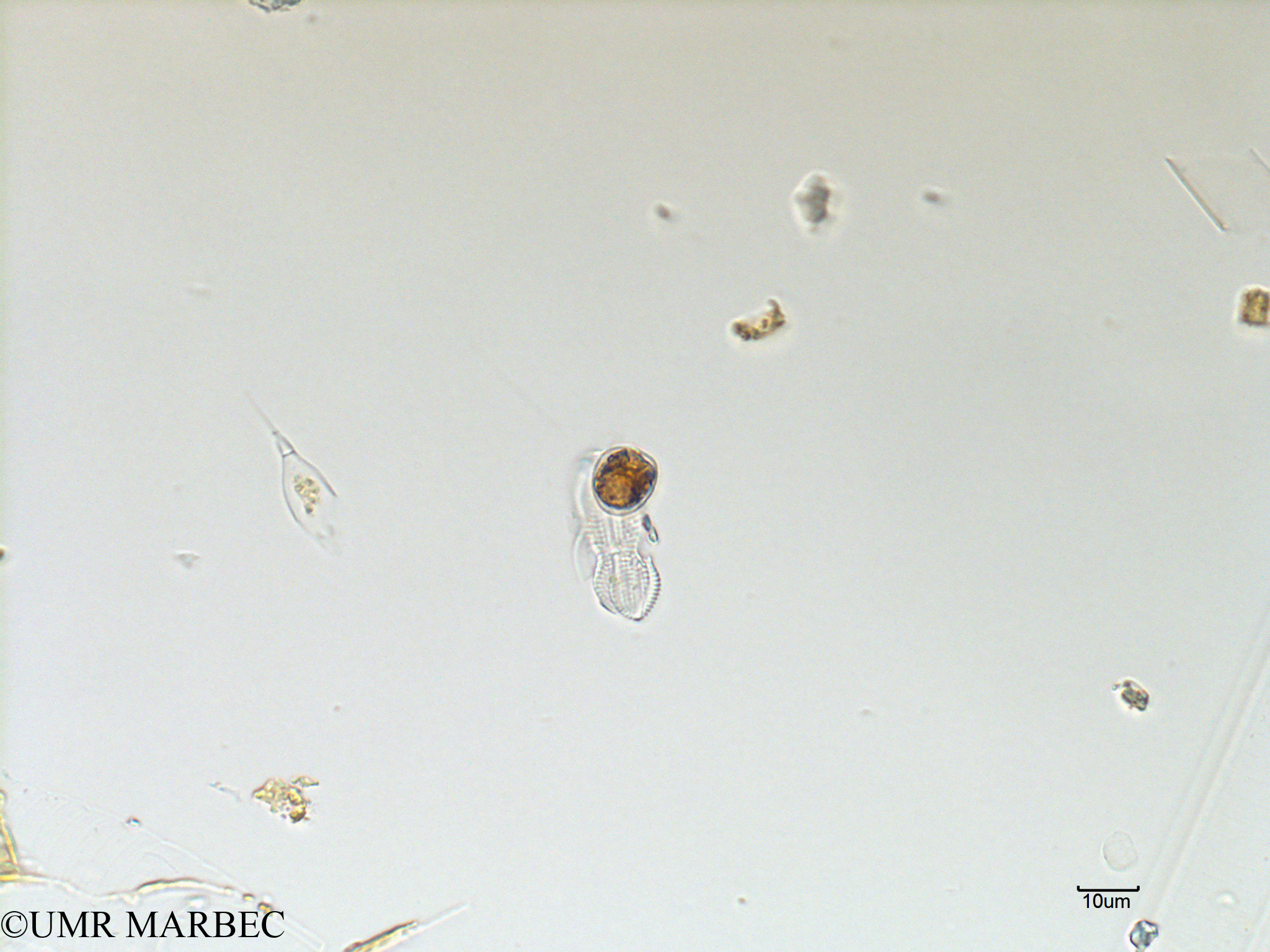 phyto/Scattered_Islands/mayotte_lagoon/SIREME May 2016/Prorocentrum cordatum (MAY3_Proro cordatum).tif(copy).jpg