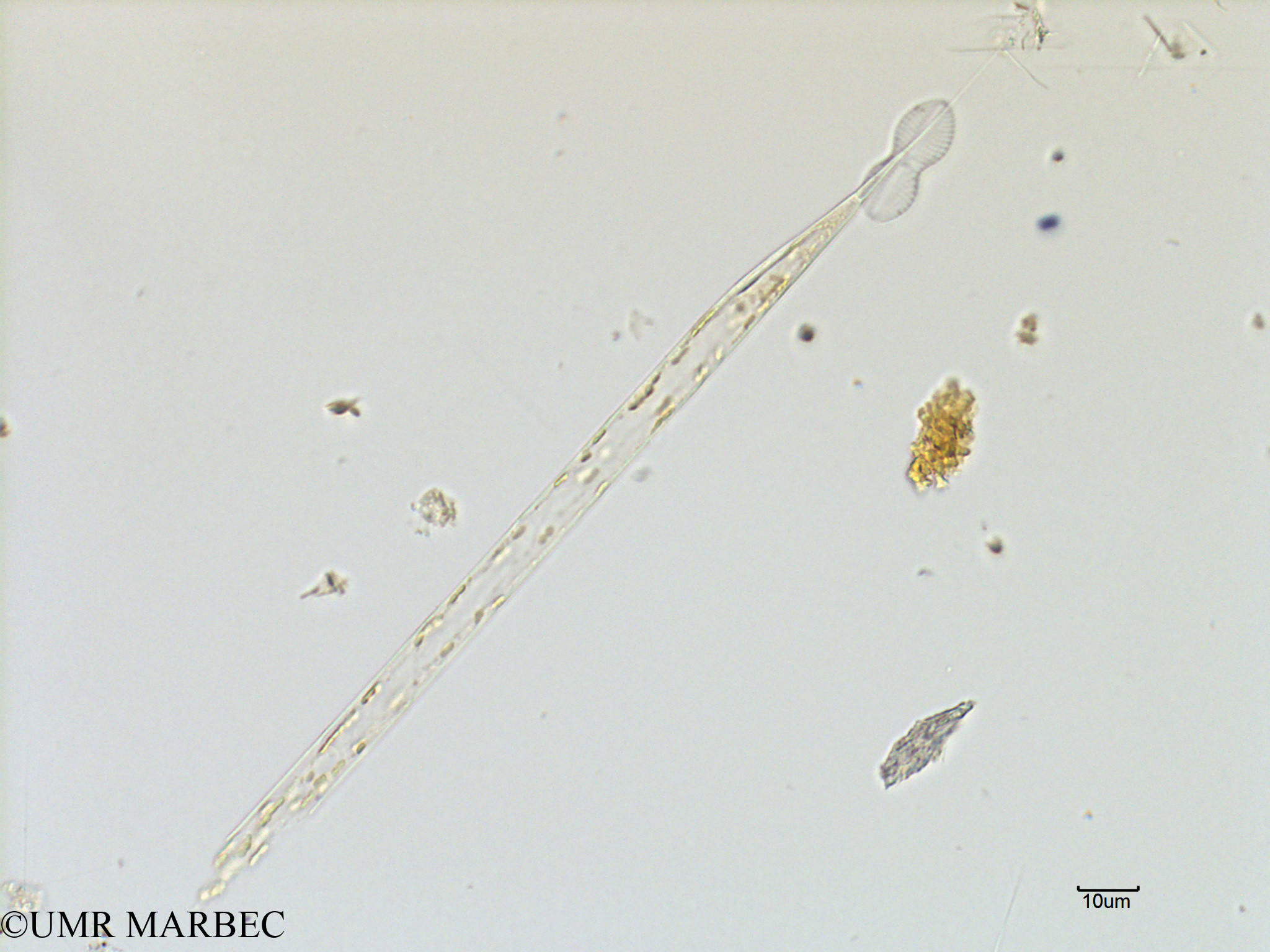 phyto/Scattered_Islands/mayotte_lagoon/SIREME May 2016/Rhizosolenia hebetata (MAY3_rhizosolenia-2).tif(copy).jpg