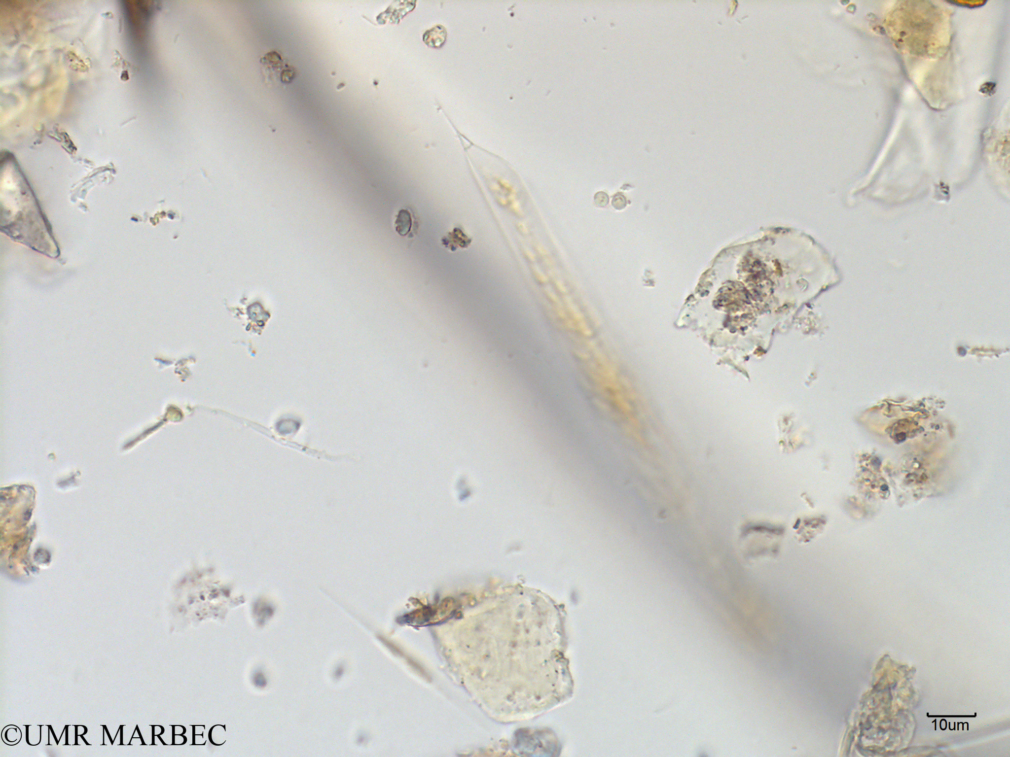 phyto/Scattered_Islands/mayotte_lagoon/SIREME May 2016/Rhizosolenia imbricata (MAY2_rhizo b-2).tif(copy).jpg